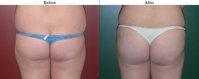 Tulsa Cosmetic Surgery Whitlock Butt Lift Before After Web32