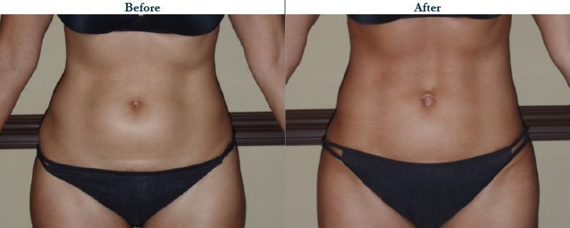 Tulsa Cosmetic Surgery Whitlock Liposuction Before After Web34