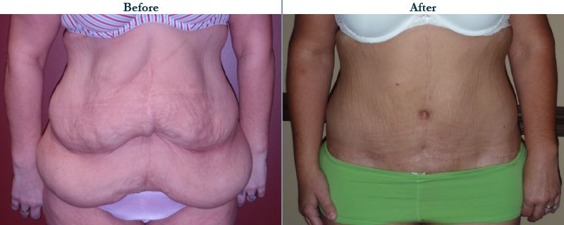 Tulsa Cosmetic Surgery Whitlock Tummy Tuck Before After Web37